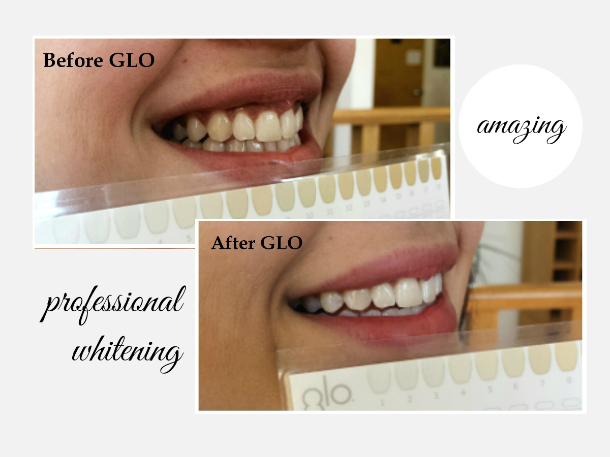 tooth whitening treatment